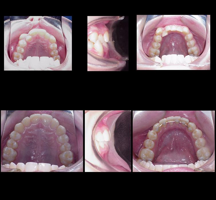 Ortodoncia Antes y Despues