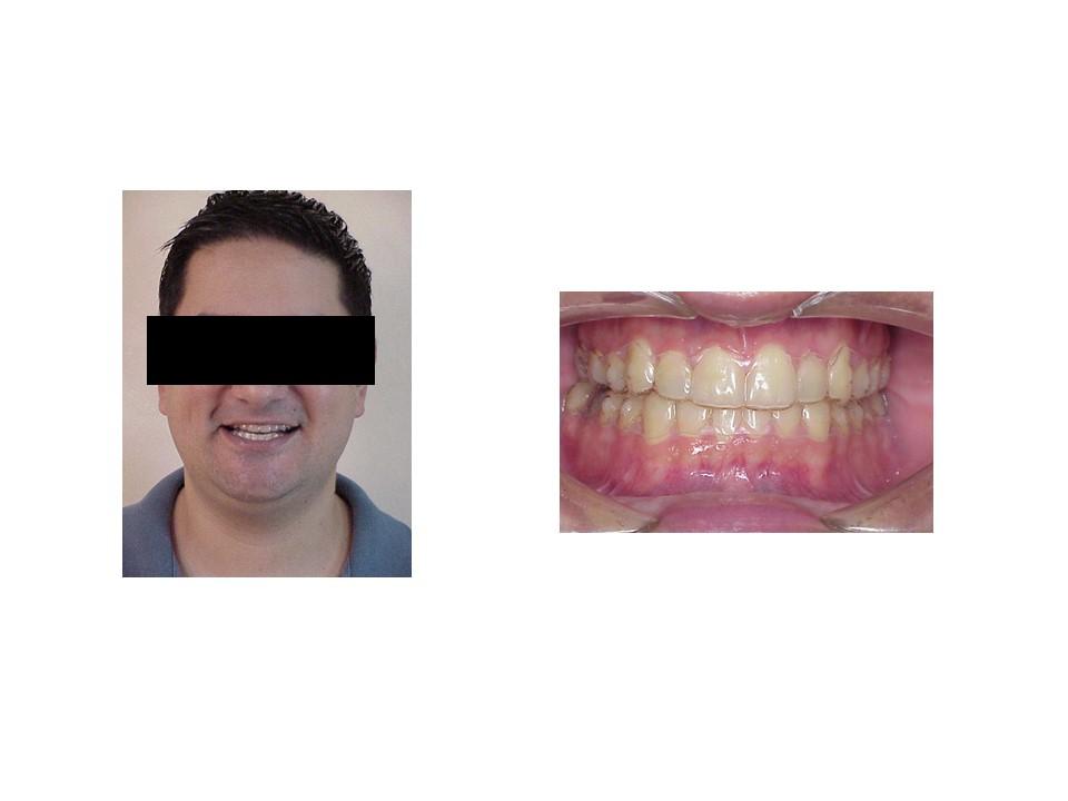 Dentistas en Monterrey