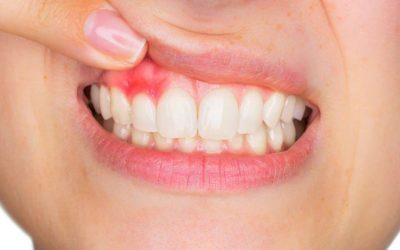 """""""Qué indica el color de las encías sobre la salud de tu boca."""""""